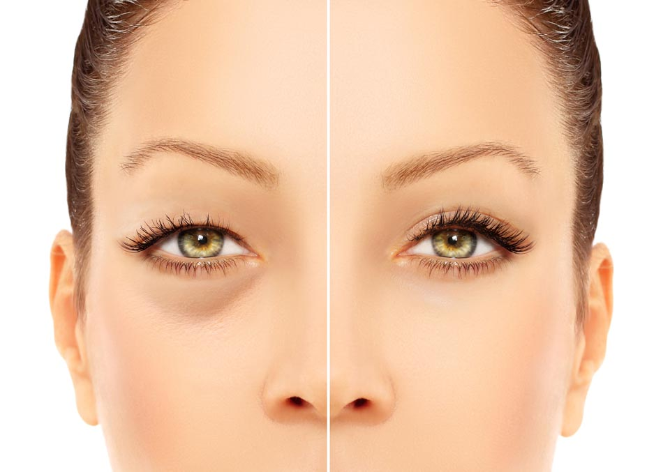 Eyelid Lift | Plastic Surgery of Tulsa