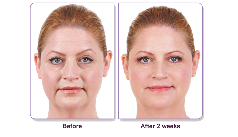 Juvederm Before and After