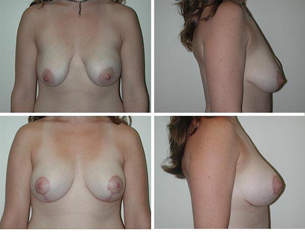 Breast Lift | Plastic Surgery of Tulsa