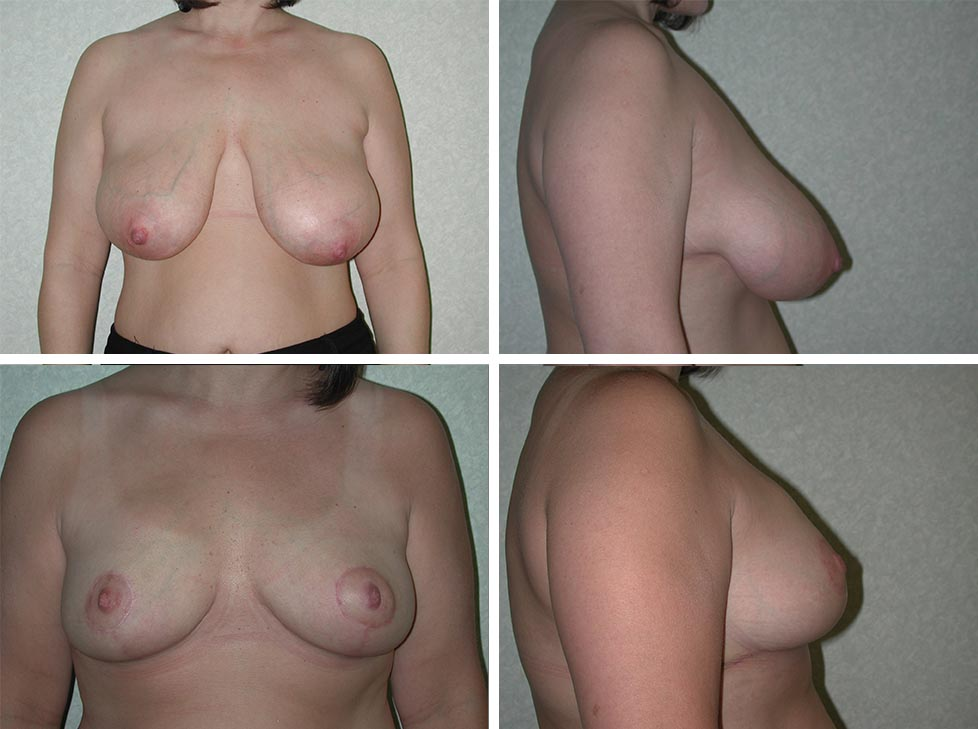 Breast Reduction | Plastic Surgery of Tulsa