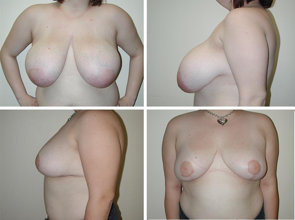 Breast Reduction | Plastic Surgery of Tulsa