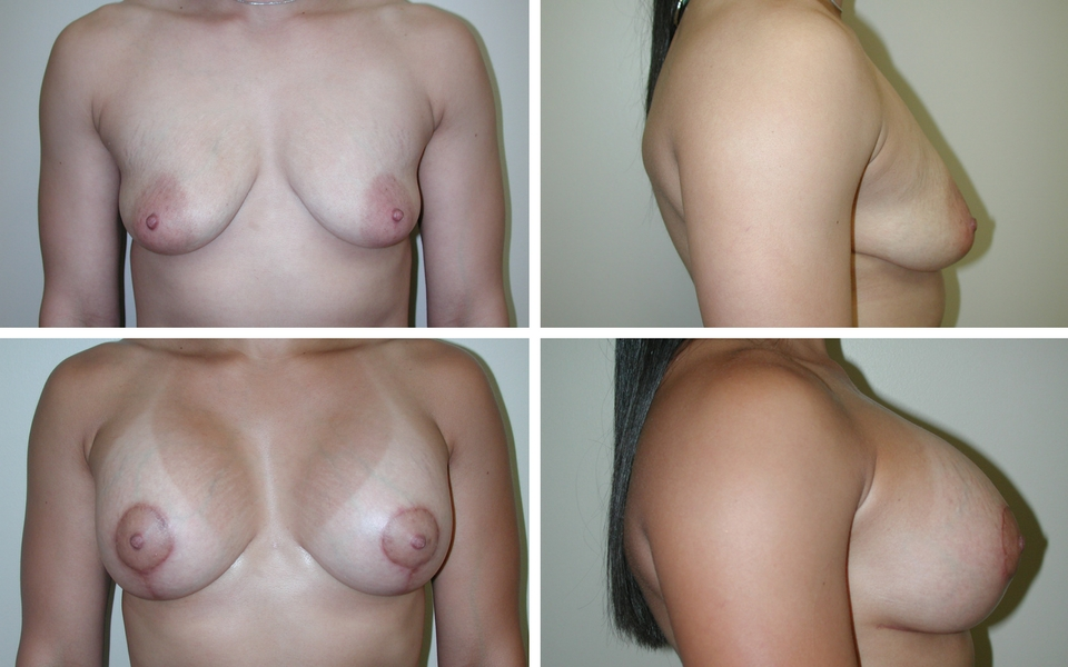 Breast Reconstruction | Plastic Surgery of Tulsa