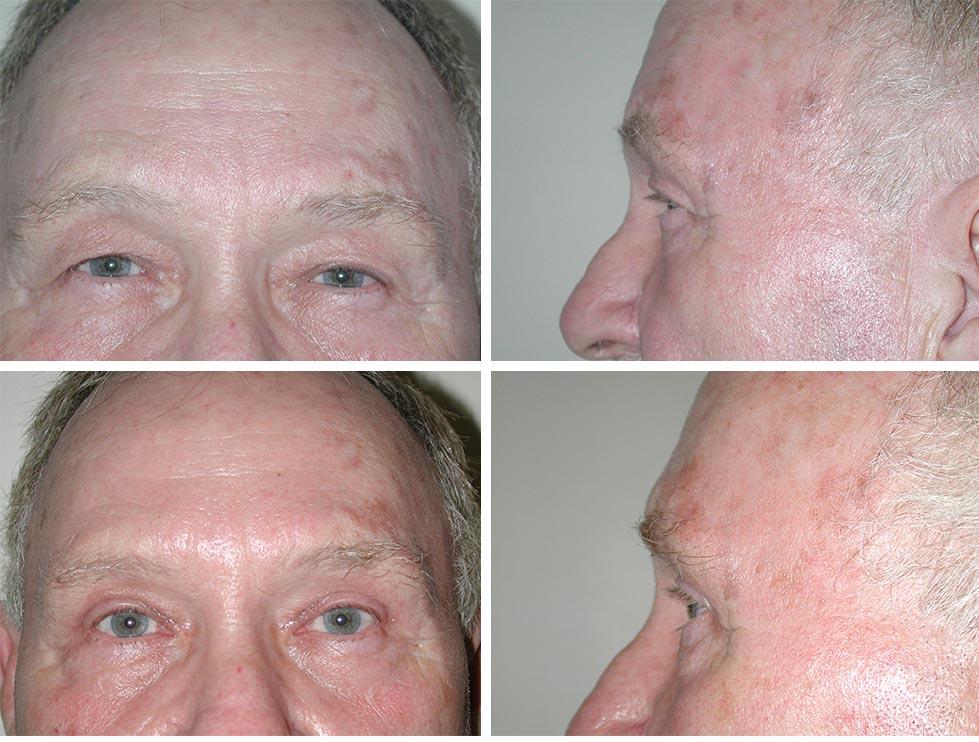 Blepharoplasty   Plastic Surgery of Tulsa