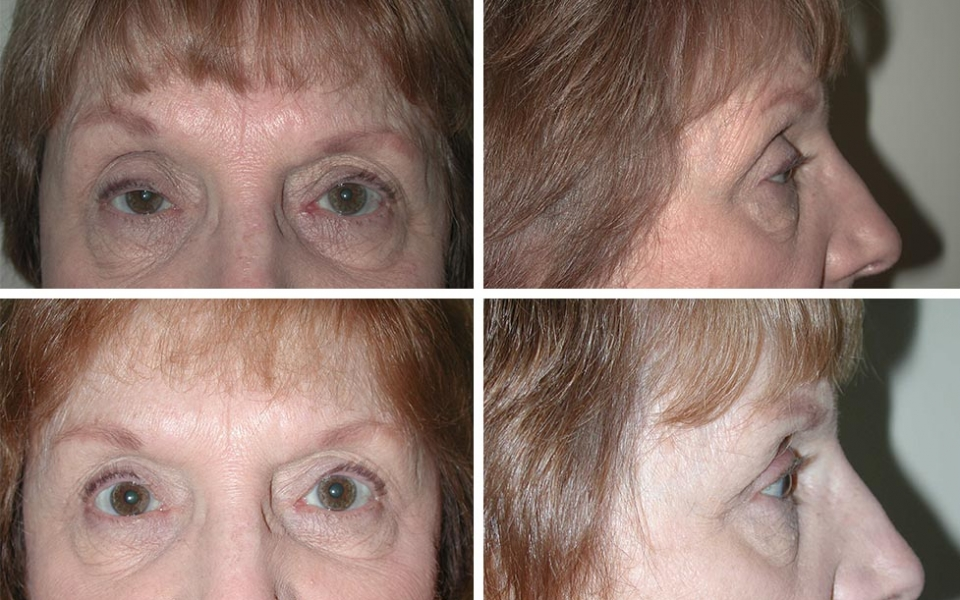 Blepharoplasty | Plastic Surgery of Tulsa