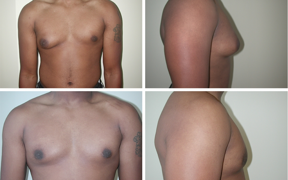Gynecomastia | Plastic Surgery of Tulsa