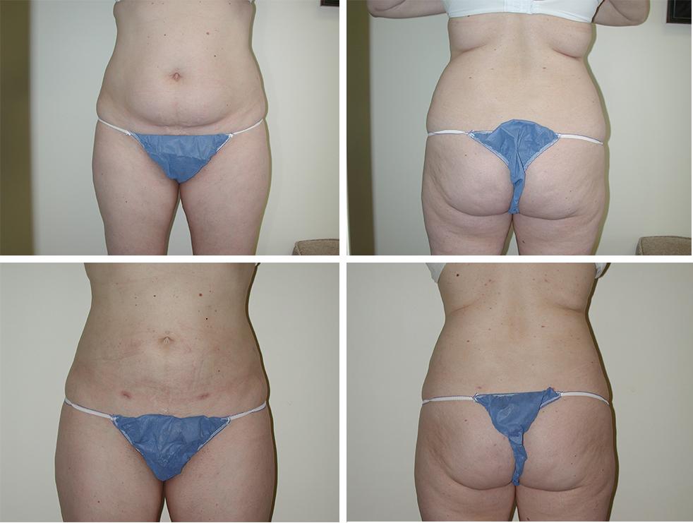 Liposuction | Plastic Surgery of Tulsa