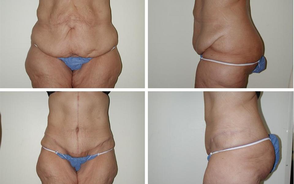Abdominiplasty | Tummy Tuck | Plastic Surgery of Tulsa