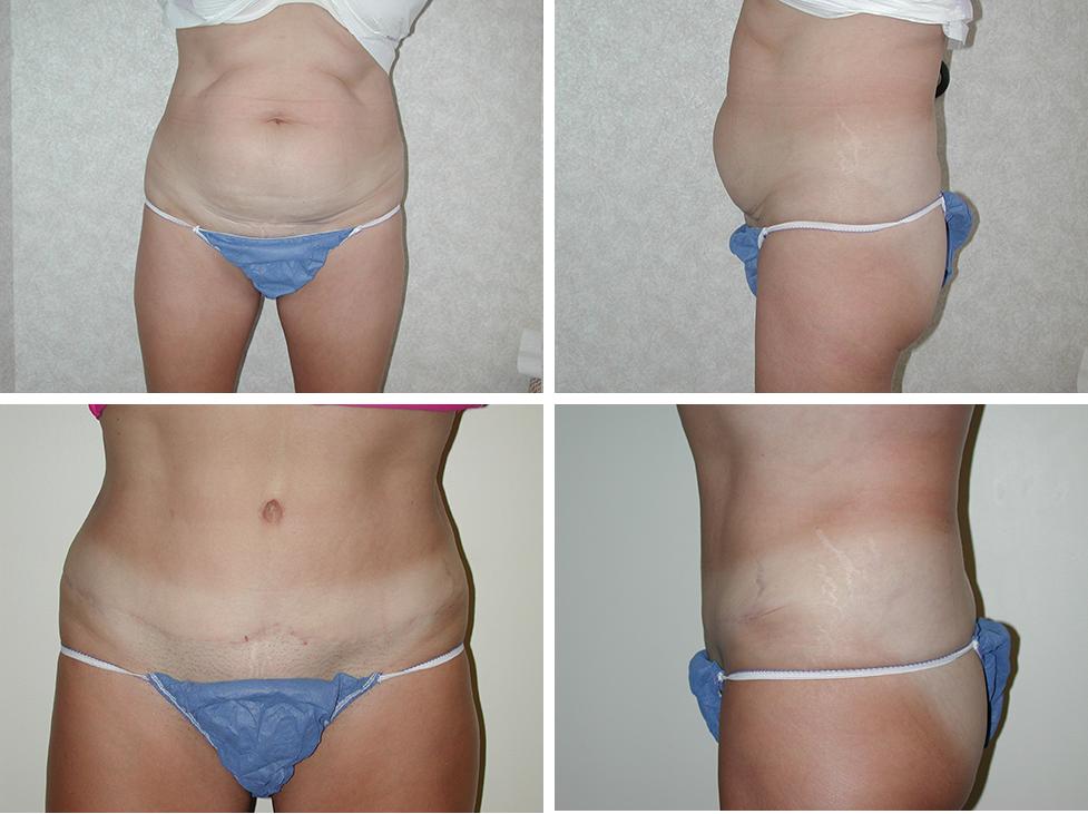 Abdominoplasty | Plastic Surgery of Tulsa