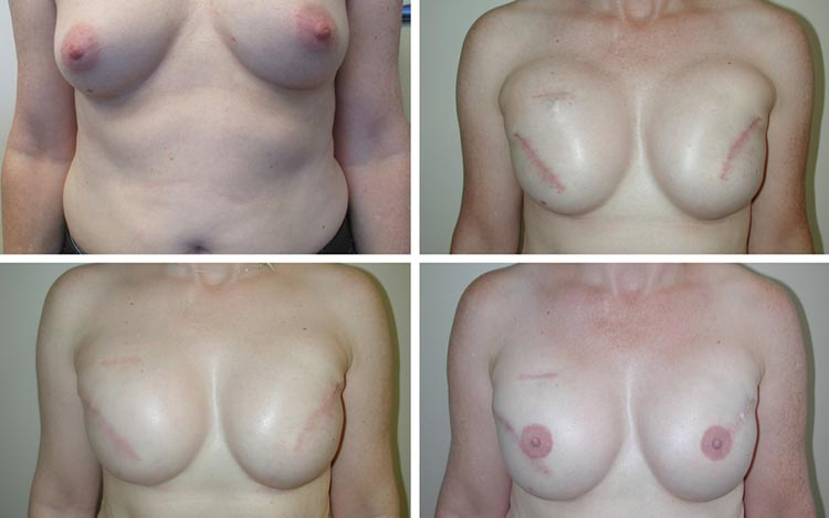 tulsa breast reconstruction