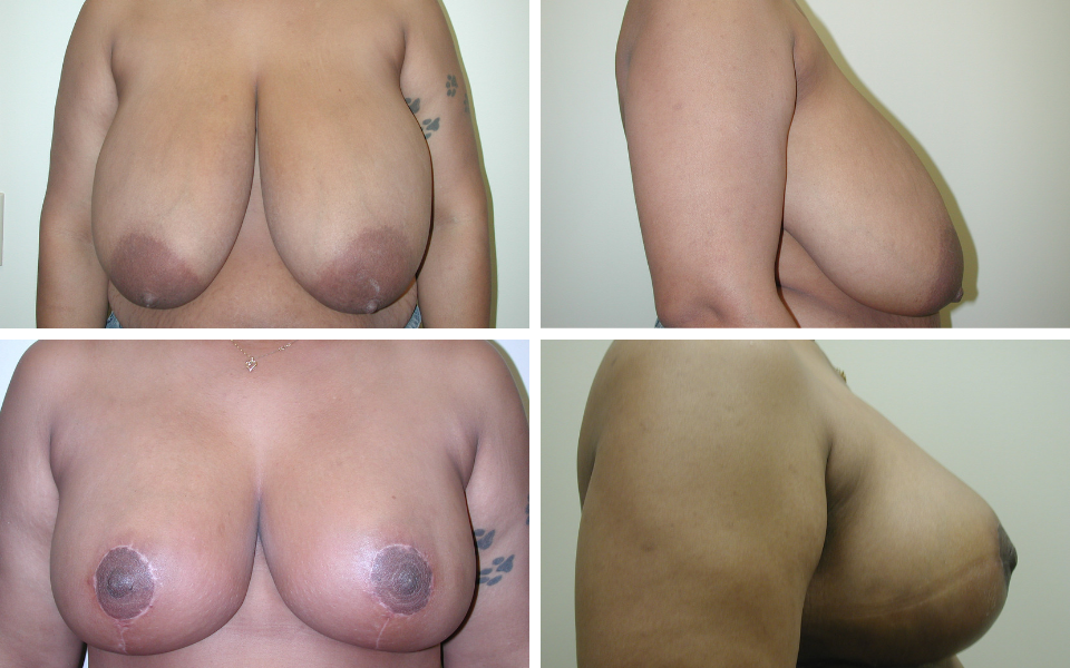 Tulsa breast reduction