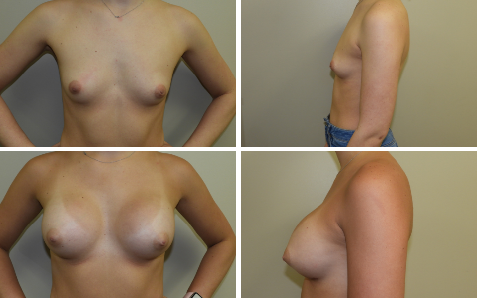dr stephen paulsen breast augmentation
