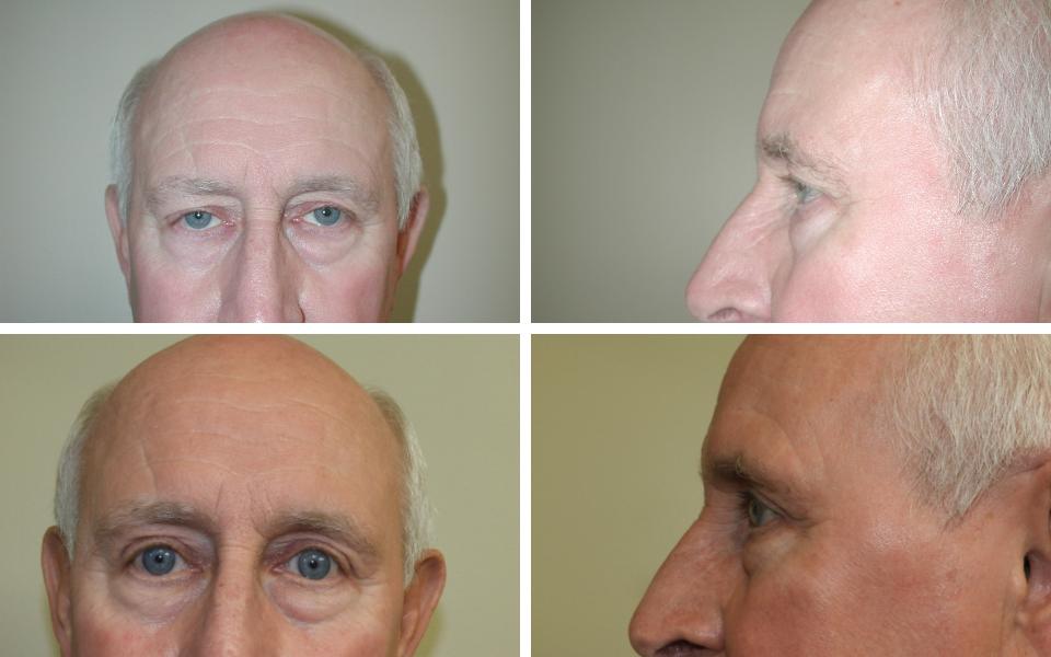 tulsa eye lift doctor