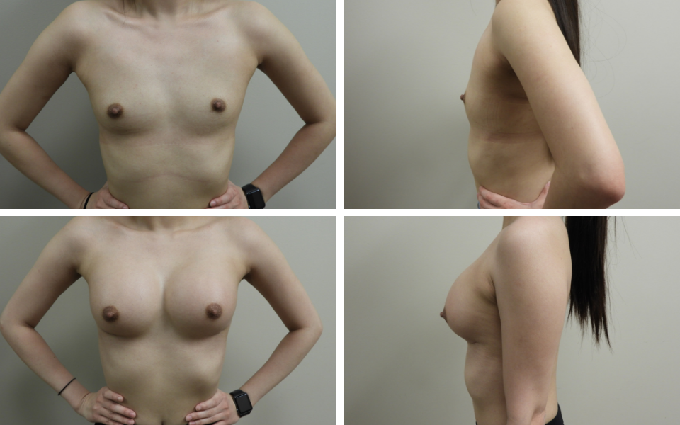 tulsa breast augmentation