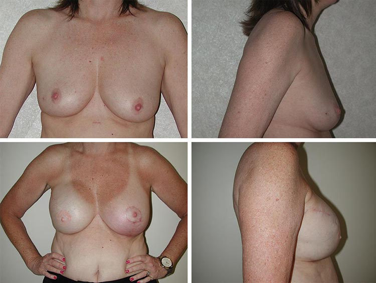 Breast Augmentation | Plastic Surgery of Tulsa