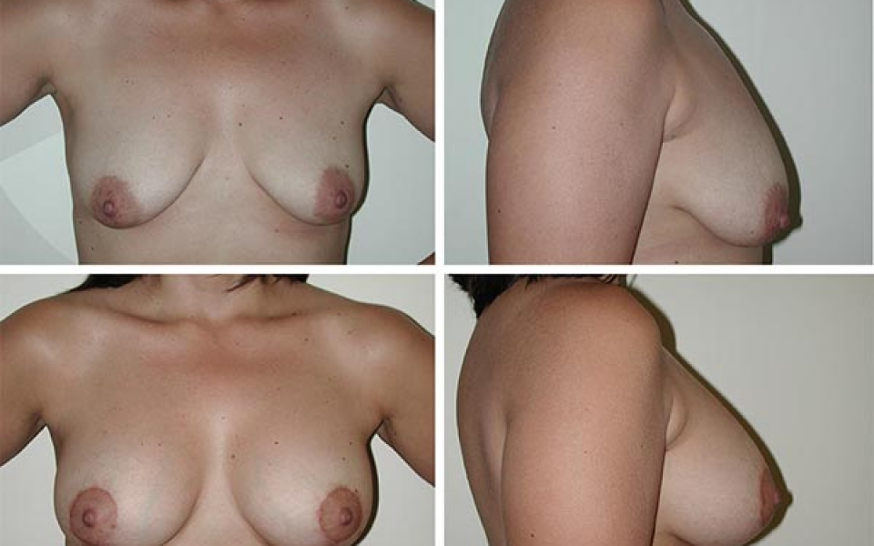 Breast Lift | Plastic Surgery of Tulsa