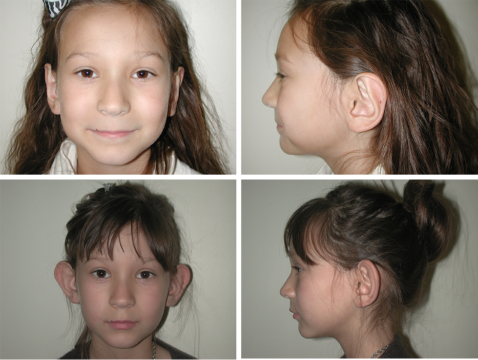 Otoplasty   Ear Pinning   Plastic Surgery of Tulsa