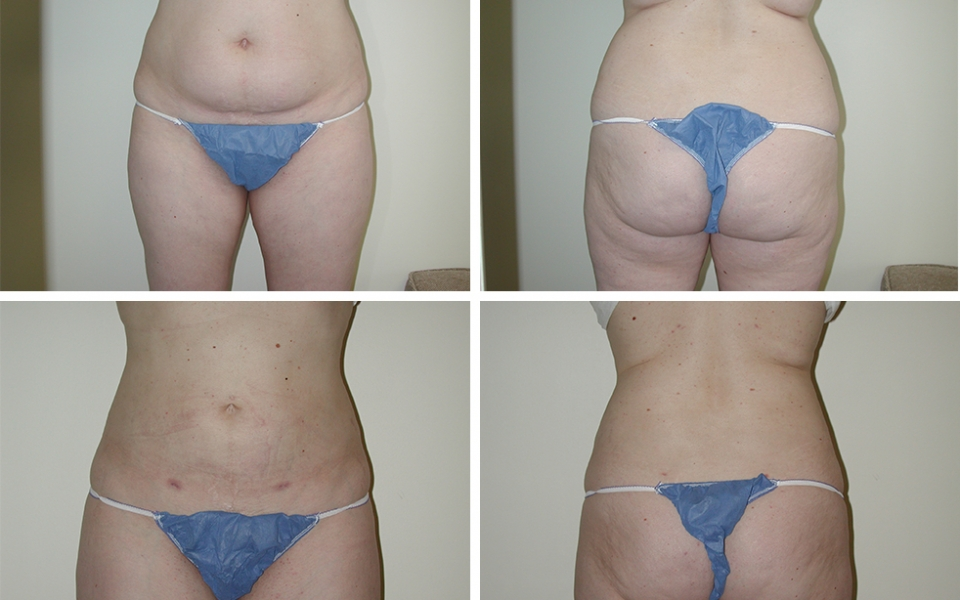 Liposuction | Plastic Surgery of Tulsa