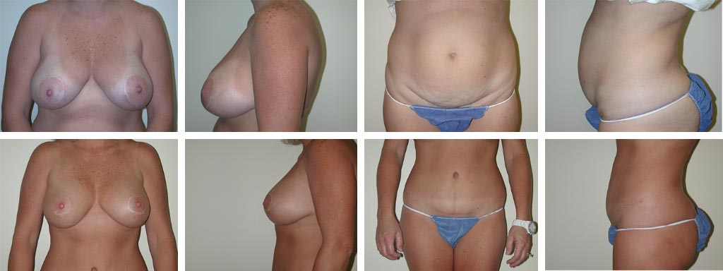 Abdomnioplasty | Mommy Makeover at Plastic Surgery of Tulsa